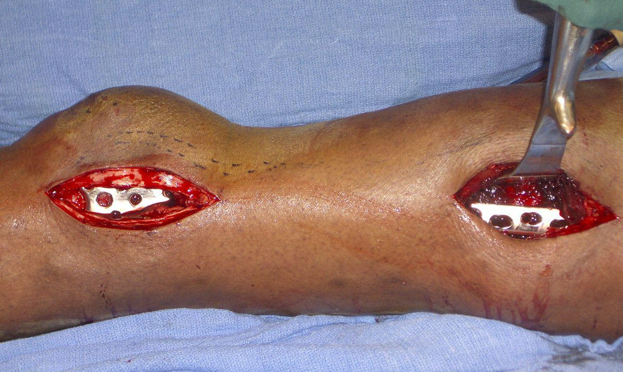 blog-minimally-invasive-surgery-in-orthopaedic-trauma